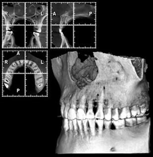 CT画像診断