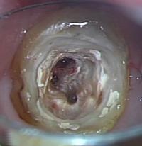 歯根の治療