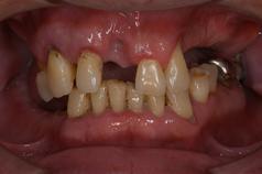 歯周病症例1(BEFORE)