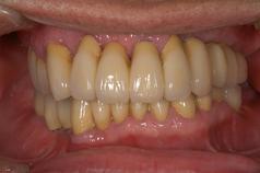歯周病症例1(AFTER)
